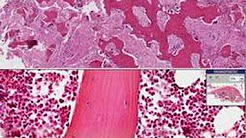 Histopathology Bone--Paget disease