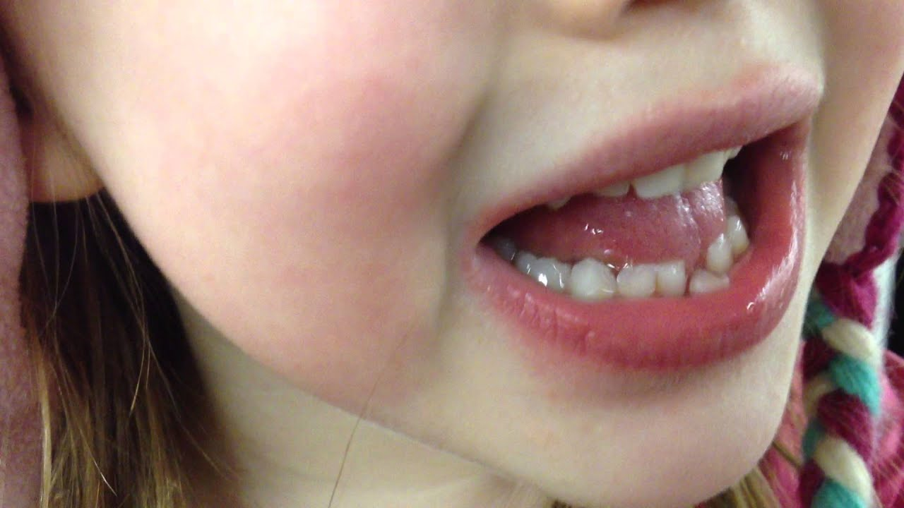 First Loose Tooth - YouTube