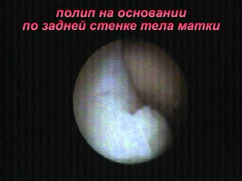 Полип эндометрия - симптомы, лечение, удаление полипа