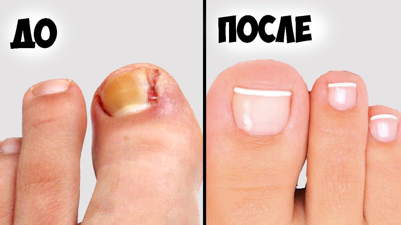 Профилактика вросшего ногтя в домашних условиях