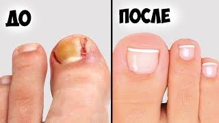 видео Практические способы лечения болезней ногтей на руках и ногтях.