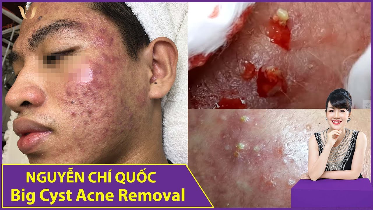 Big Cyst Acne Removal | Điều trị mụn hiệu quả số 1 TPHCM| Hiền Vân Spa|Nguyễn Chí Quốc| 557