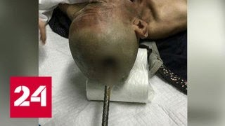 Смотреть видео В Китае строитель выжил после того, как его голову пробил металлический прут - Россия 24 онлайн