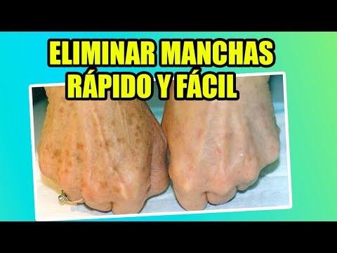 C mo quitar las manchas de las manos yasmany youtube - Sacar manchas de oxido del piso ...