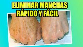 CÓMO ELIMINAR LAS MANCHAS DE LAS MANOS | YASMANY thumbnail
