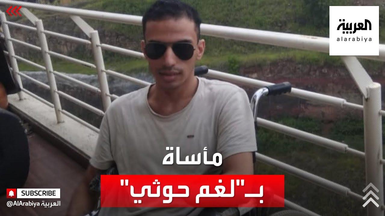 انفجار لغم حوثي يتسبب في فقدان شاب يمني لذراعيه ورجليه وعينيه  - نشر قبل 2 ساعة