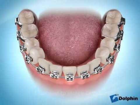 alignement des dents la douleur de l
