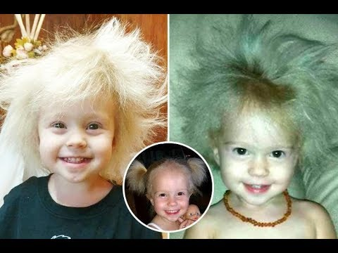 Jaili Has Uncombable Hair Syndrome, a Rare Genetic Disorder