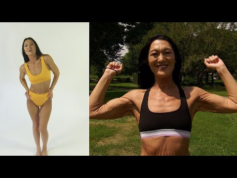 26-Year-Old Woman With Wrinkling Skin Condition Wants a Career in Modeling