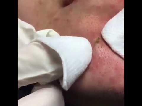 Беременность 7 недель прыщи на лице