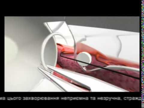 Технология лекаственных форм и галеновых препаратов