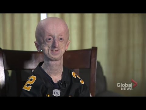 "Second oldest in the world with rare genetic disorder, Hamilton man ""keep's fighting"""