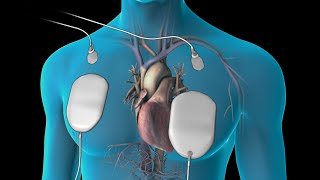 Cardioversion (for Atrial Fibrillation)