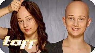 Maya (13) leidet an genetisch bedingtem Haarausfall | taff | ProSieben