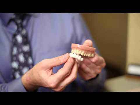 Whitening False Teeth with SmilesNY