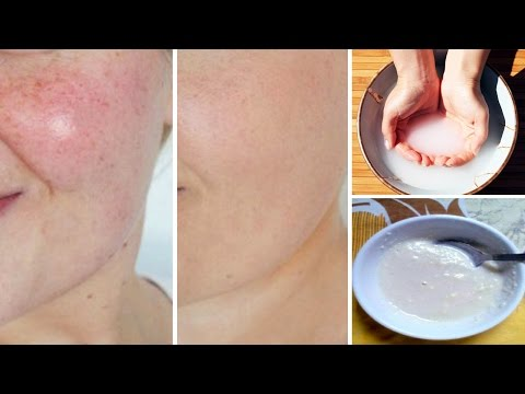 Thumbnail: Look 10 Years Younger With This Healthy Miracle Face Mask