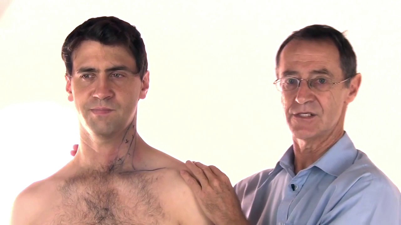 Sternocleidomastoid Sydrome and Trigger Points - Physiopedia
