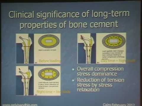 Bone cement and cementing techniques - Prof. Foad Zamel By D. Mohamed Abo Elsoaud