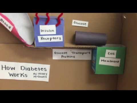 Type 2 Diabetes Model