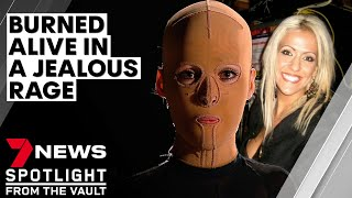 The girl behind the mask: set alight in a jealous rage and scarred for life | 7NEWS Spotlight