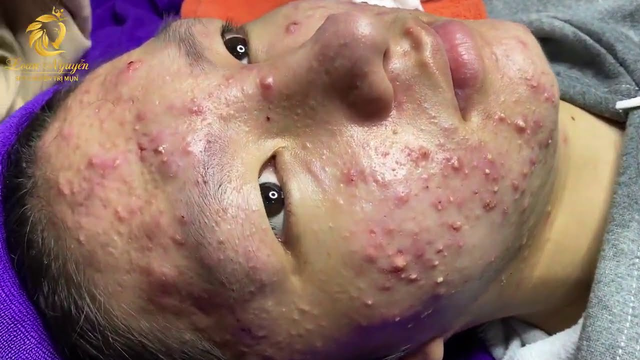 Download Treatment of acne tablets, pustules and blackheads (358) | Loan Nguyen