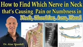 How to Determine Which Nerve in Neck that's Causing Pain or Numbness in Neck, Shoulder, Arm, Hand