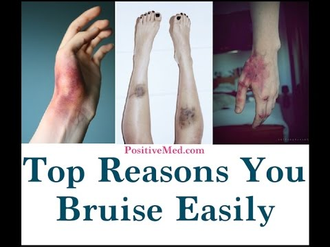 Top Reasons You Bruise Easily