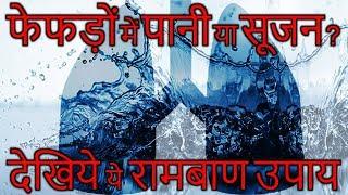 Pleurisy – फेफड़ो में पानी या सूजन हो तो रामबाण उपाय।
