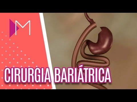 Cirurgia bariátrica - Mulheres (27/04/18)