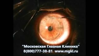 Лазерная коррекция зрения при астигматизме (ЛАСИК)