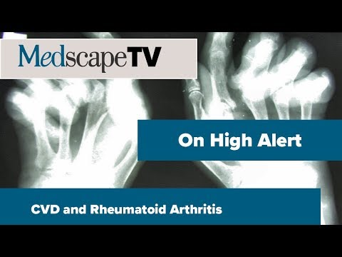 On High Alert | CVD And Rheumatoid Arthritis | MedscapeTV