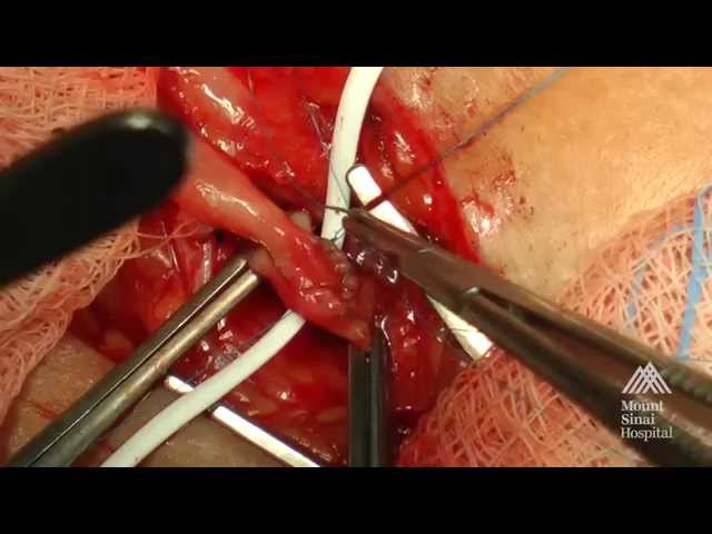 THE MOUNT SINAI SURGICAL FILM ATLAS: Arteriovenous Fistula