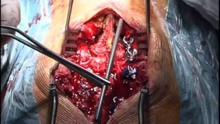 Cirugia columna fractura luxacion vertebral