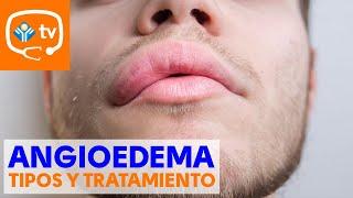 Labios inflamados para medicina