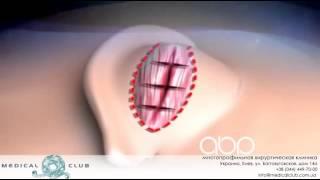 Отопластика  Техника проведения операции(http://goo.gl/H7a1W7 Отопластика - это достаточно большое ответвление пластической хирургии, которое включает в..., 2015-02-09T12:58:45.000Z)