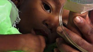 A Madagascar, le difficile combat contre l'épidémie de rougeole