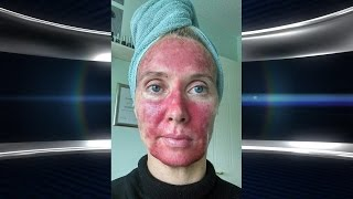Woman's Painful Skin Treatment Goes Viral!