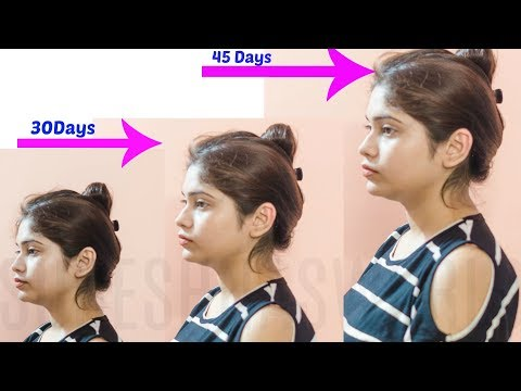 How To Increase Fat In Body Naturally In Hindi