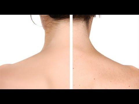 Consejos para lucir una hermosa espalda sin acné