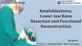 Video Ameloblastoma, Lower Jaw Bone Resection and Functional Reconstruction download MP3, 3GP, MP4, WEBM, AVI, FLV Juni 2018