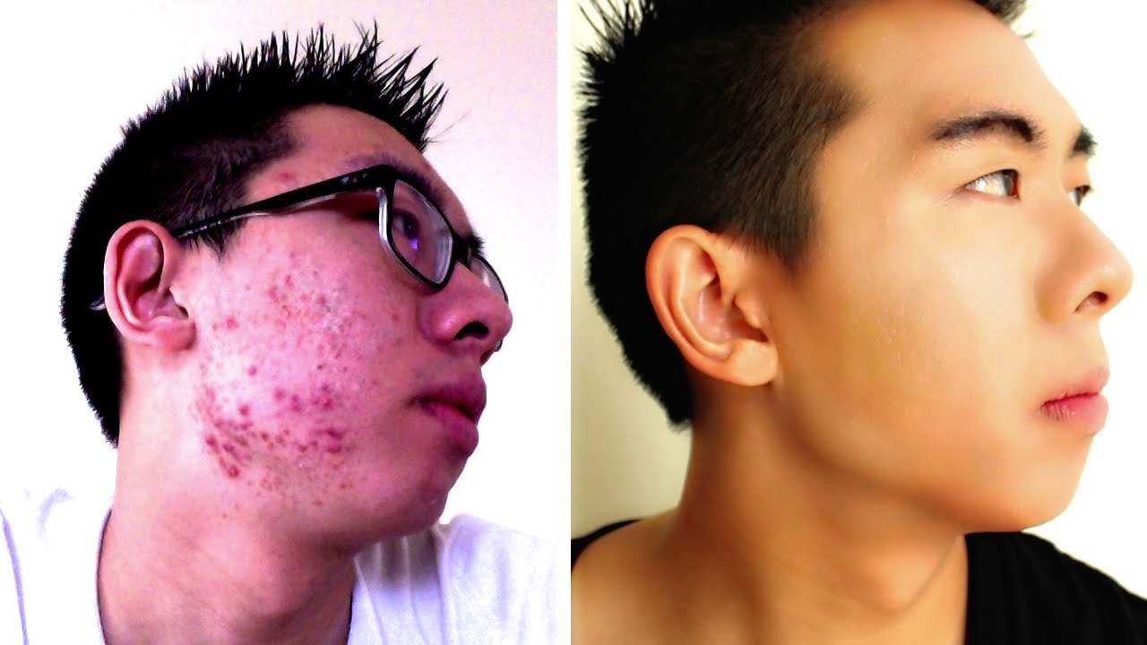 HOW TO COVER UP ACNE | FULL COVERAGE ROUTINE | MENS MAKEUP - YouTube