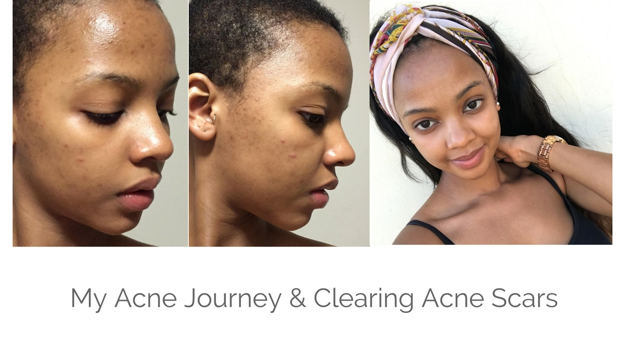 My Acne Journey: Acne Scar Clearing Skincare Routine | MIHLALI N