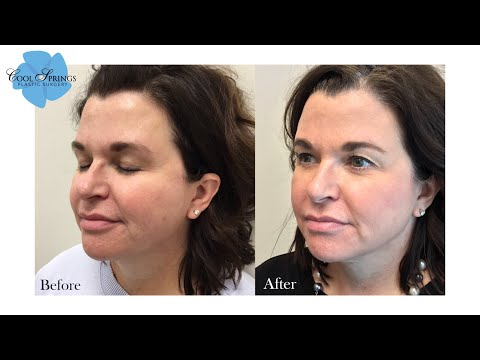 sciton-forever-young-bbl-halo-laser-combo-full-face-treatment-|-nashville-aesthetic-provider