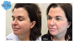 Sciton Forever Young BBL + Halo Laser Combo Full Face Treatment | Nashville Aesthetic Provider