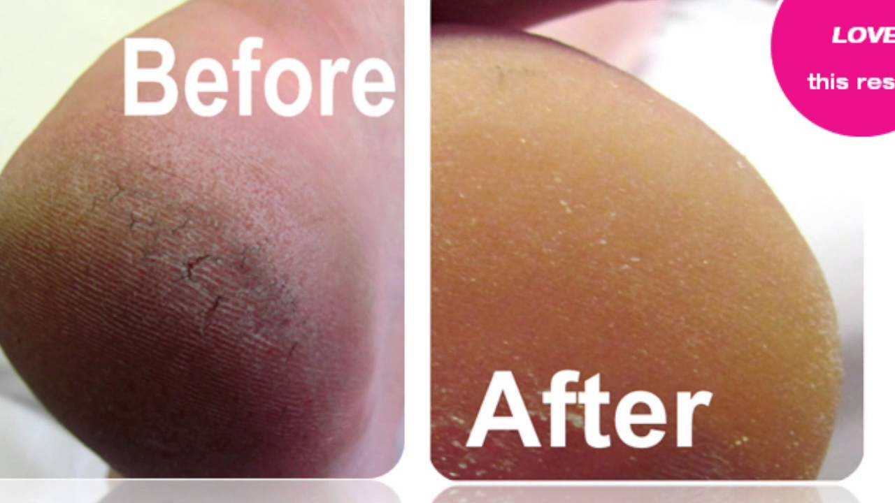 Best pedicure before and after elim spa products youtube for Fish pedicure before and after