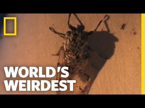 Larva Removed from a Girl's Scalp | World's Weirdest