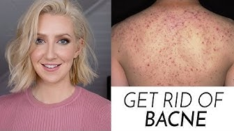 How To Get Rid Of Bacne! | Sharon Farrell