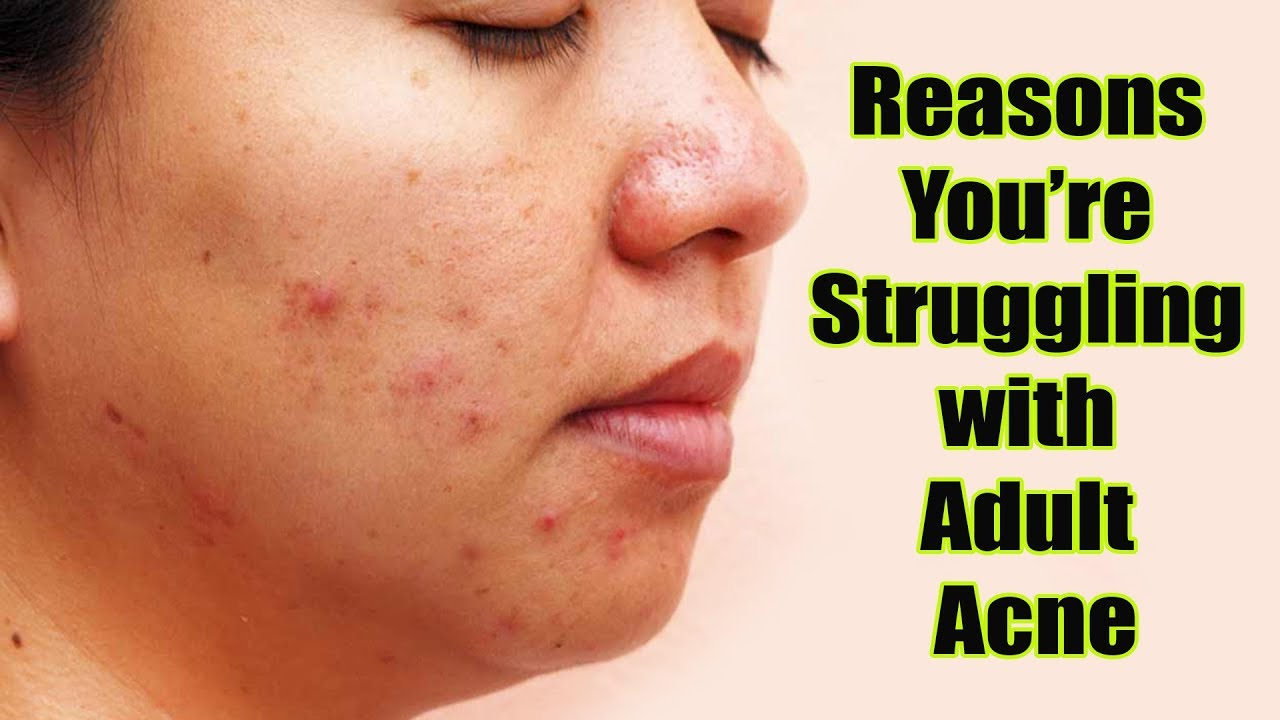 Reasons Youre Struggling With Adult Acne Footloose