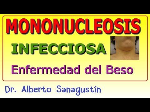 infección por citomegalovirus humano y lupus eritematoso sistémico