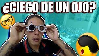 POR NO CUIDARME AHORA ESTOY CIEG@ | ¿DE POR VIDA? | TORITO BLOGS